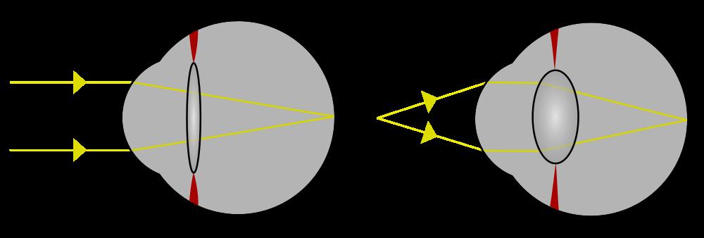 Accomodazione del cristallino nell'occhio